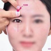 Le point Yang Bai du méridien de la vésicule biliaire (14VB)
