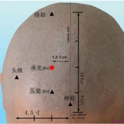 Le point Cheng Guang du méridien de la vessie (6V)