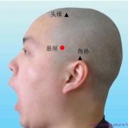 Le point Xuan Li du méridien de la vésicule biliaire (6VB)