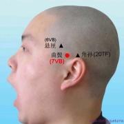 Le point Qu Bin du méridien de la vésicule biliaire (7VB)