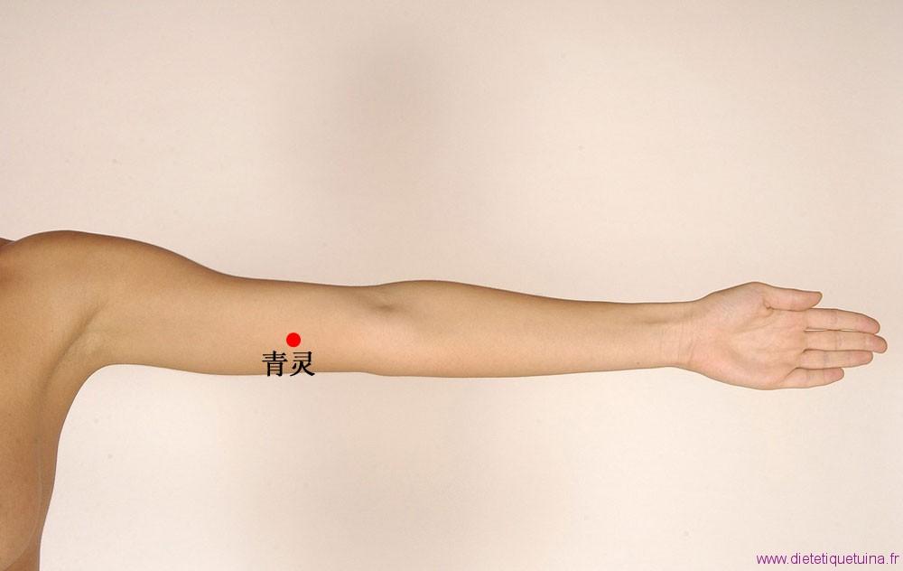Le point 2C sur le bras