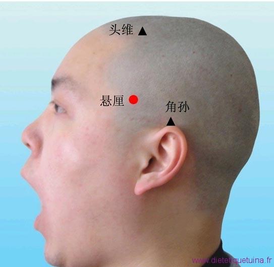 Emplacement de 6VB sur la tête d'un homme