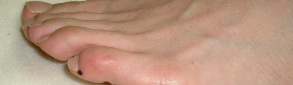 Point d'acupuncture Zhi Yin du du méridien de la vessie