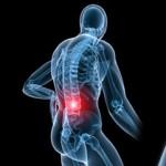 Arthrite : cause, symptômes, traitement naturel