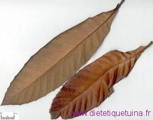 Faiblesse digestive - Distension épigastrique - nausées