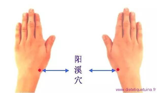 Localisation de 5IG sur les deux mains