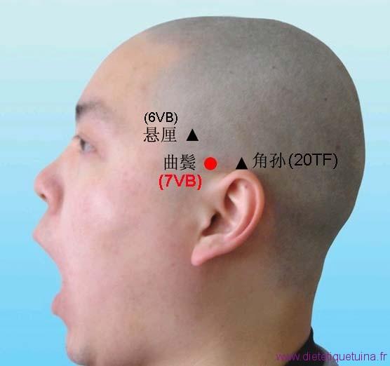 Endroit où se situe le point 7VB